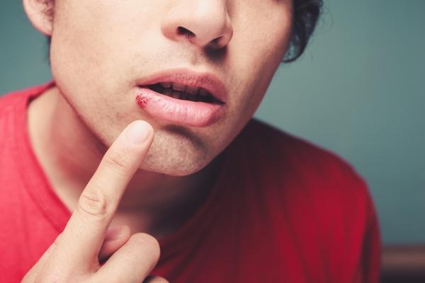 bouton de fievre ou herpès labial