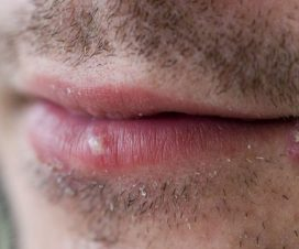 lutter-contre-herpes-buccal